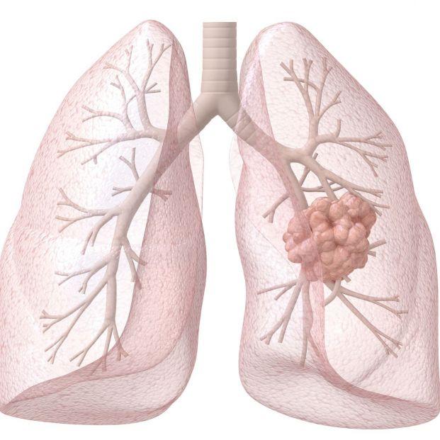 Un estudio muestra que el radón interior a dosis altas duplica el riesgo de cáncer de pulmón (Bigstock)