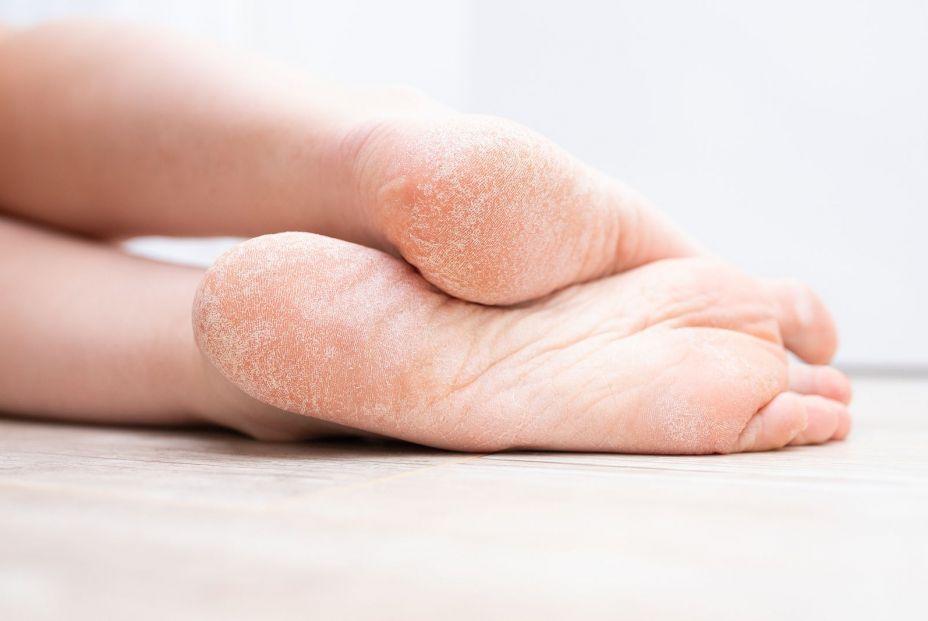 5 pasos para realizar una hidratación profunda de los pies