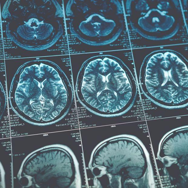 Videojuegos para tratar a personas con daños neuronales (bigstock)