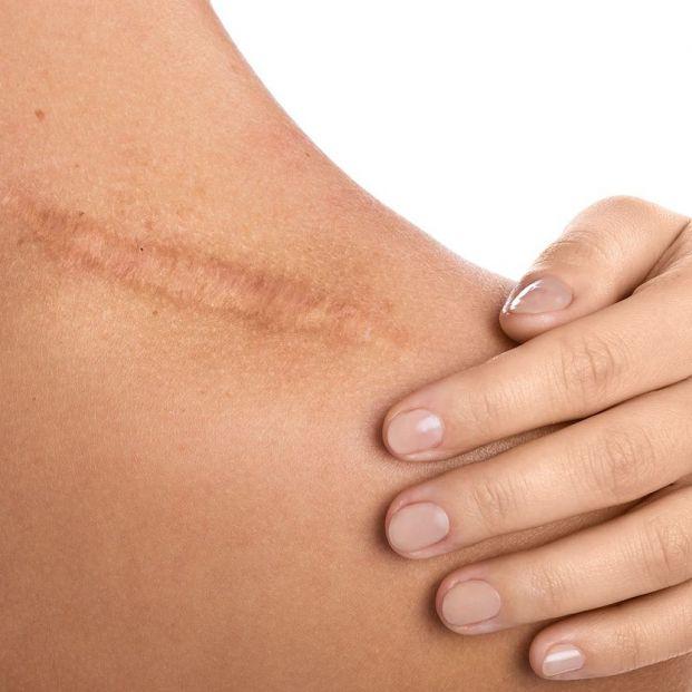 Aprende a disimular las cicatrices con estos sencillos trucos