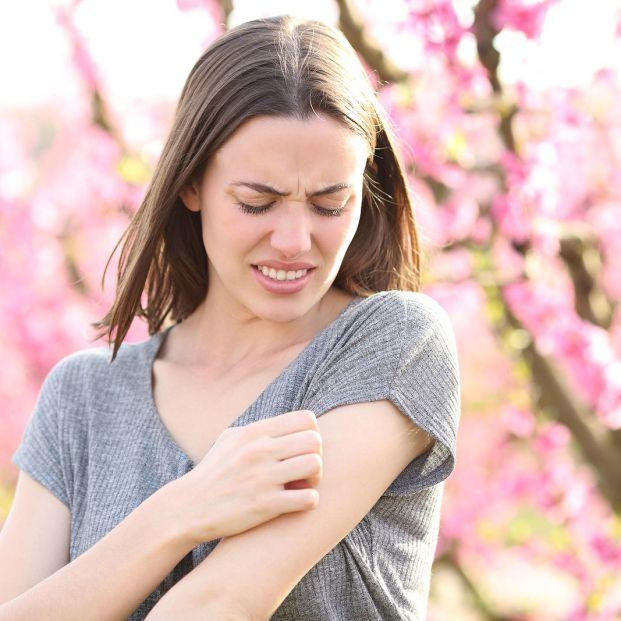 Aceite casero para aliviar las picaduras Foto: bigstock