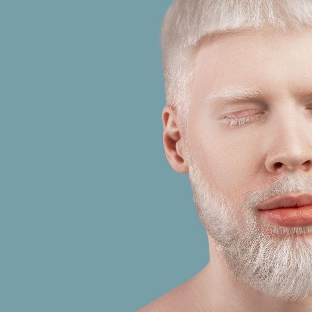 Día internacional del albinismo  qué es y porqué hay casos en todos los países del mundo (Foto Bigstock) 2