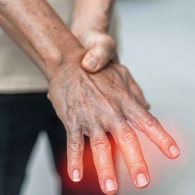 ¿Dolor en los dedos? Alívialo con estos ejercicios. Foto: bigstock