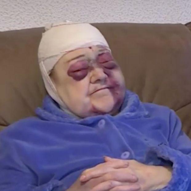 Detenido un hombre por agredir a una mujer de 91 años en la calle