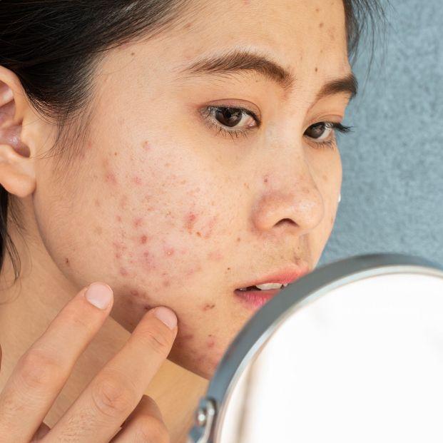 La pesadilla del acné. Foto: Bigstock