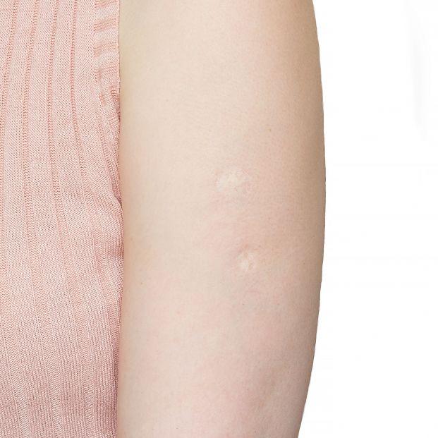 La marca de una generación: ¿Te acuerdas de qué era la vacuna que dejaba esta cicatriz en el brazo?