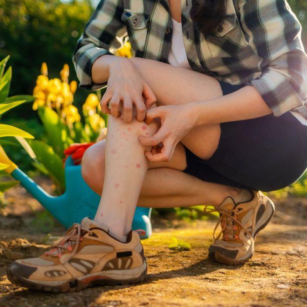 Cuidado: las alergias y las picaduras aumentan en verano. Foto: Bigstock
