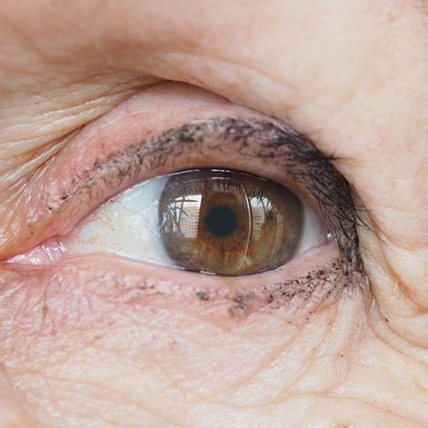 Blefaroplastia para rejuvenecer piel párpados (bigstock)