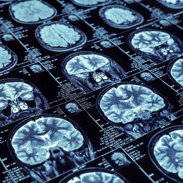 Baja la incidencia del alzhéimer sin haber encontrado una cura: estos son los motivos