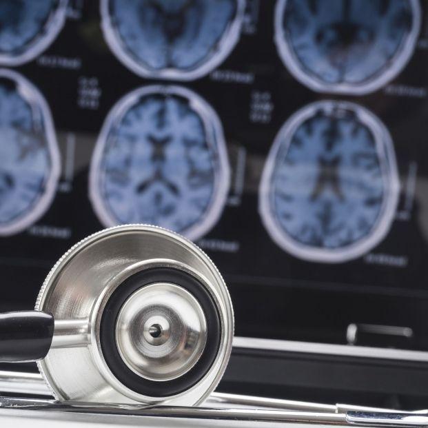 El herpes podría estar relacionado con las enfermedades neurodegenerativas