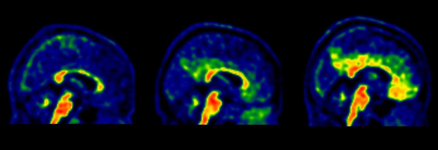 Resultado de imagen de nuevos genes implicados en el alzheimer