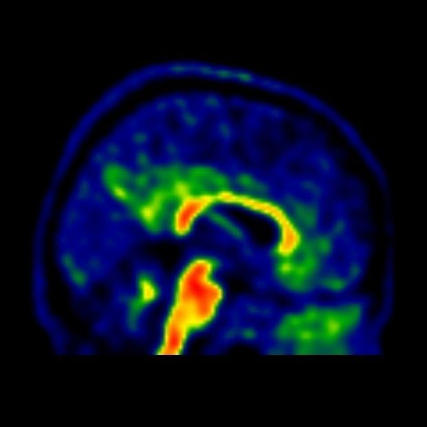 identifican tres categorías de genes implicadas en el Alzheimer