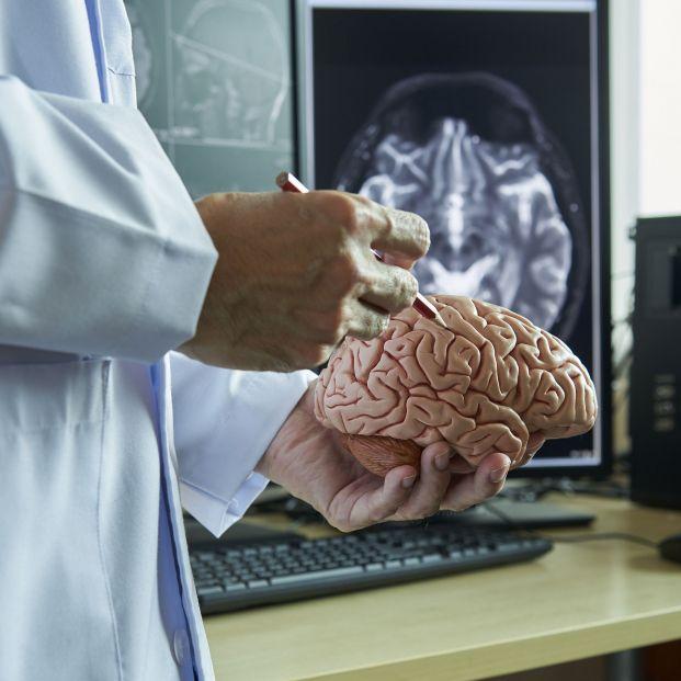 Realizado el mapa completo de cómo el alzhéimer afecta al cerebro