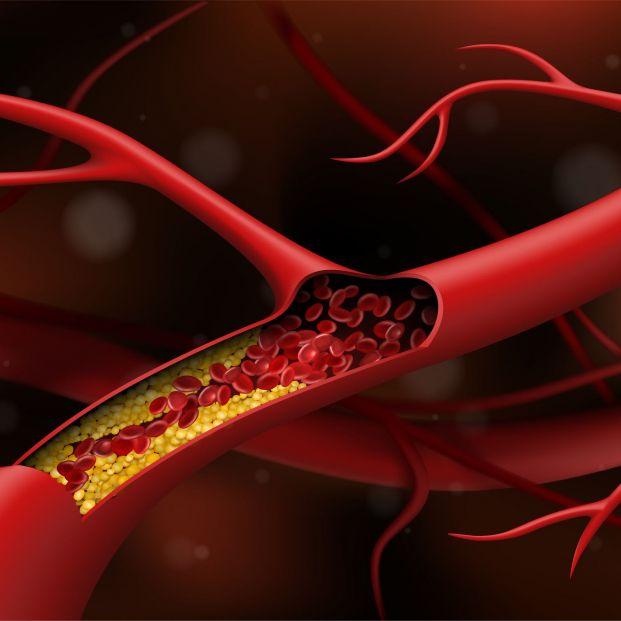 La técnica que puede reducir el colesterol con una dosis cada seis meses