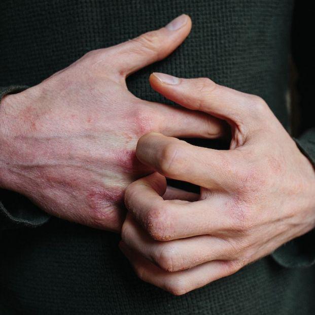 Errores que debes evitar si tienes dermatitis