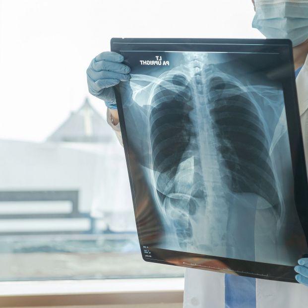 El CSIC identifica una prometedora nueva estrategia para atacar el cáncer de pulmón