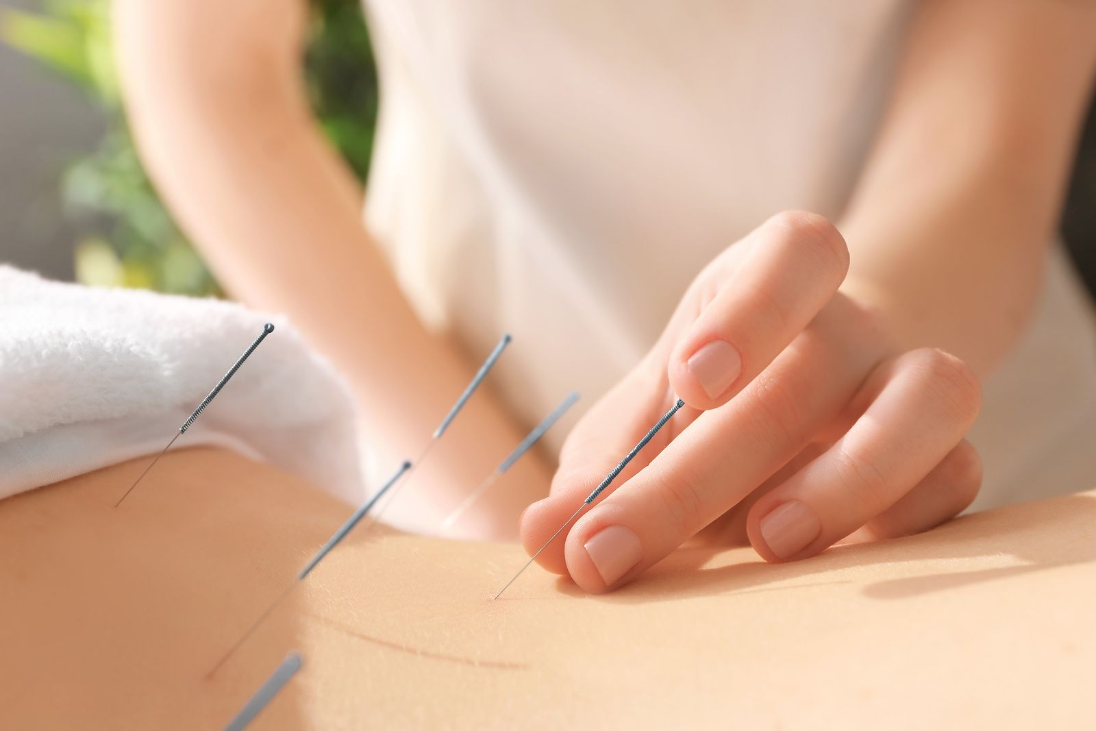 All the details about the first acupuncture session