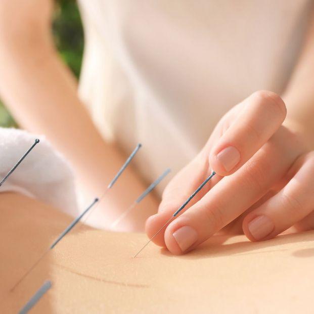 Todos los detalles sobre la primera sesión de acupuntura