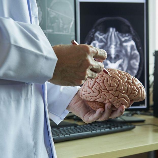 La epilepsia es un desorden cerebral de tipo eléctrico
