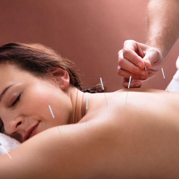 Técnica de acupuntura