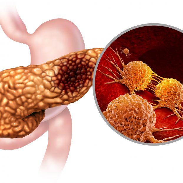 Cáncer páncreas